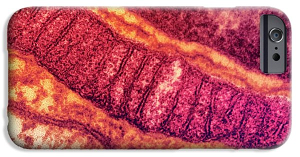 Lung Mitochondrion IPhone Case by Ami Images