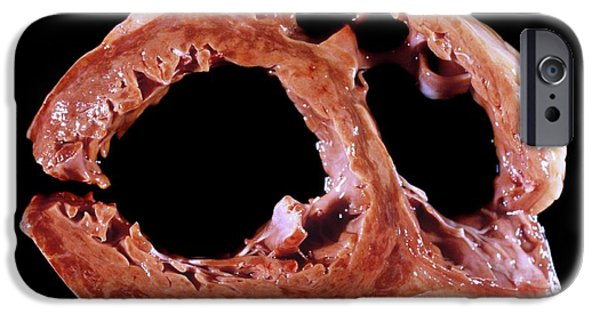 Myocarditis IPhone Case by Pr. M. Forest - Cnri