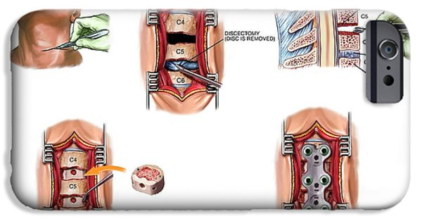 Surgery To Fuse The Cervical Spine IPhone Case by John T. Alesi