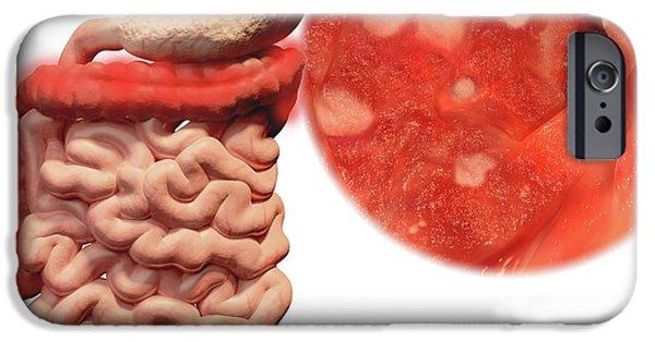 Ulcerative Colitis IPhone Case by Juan Gaertner