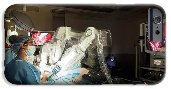 Laparoscopic Robotic Cancer Surgery IPhone Case by Jim West