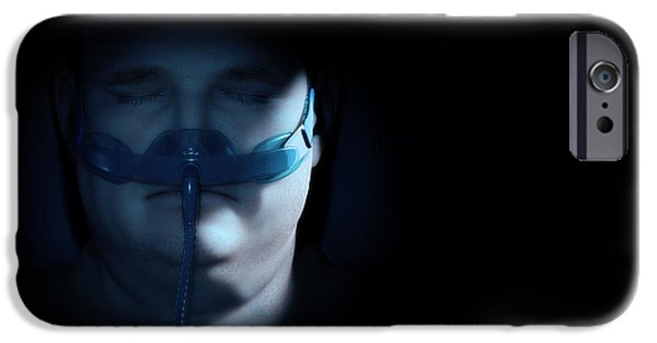 Sleep Apnea IPhone Case by Science Picture Co