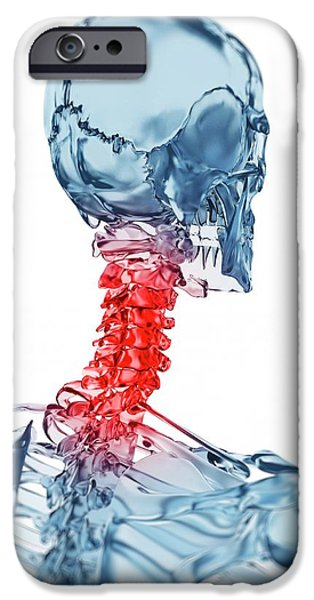 Human Neck Pain IPhone Case by Sebastian Kaulitzki