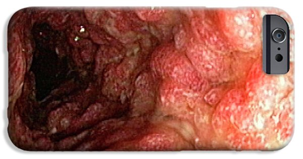Inflammatory Polyps In Ulcerative Colitis IPhone Case by Gastrolab