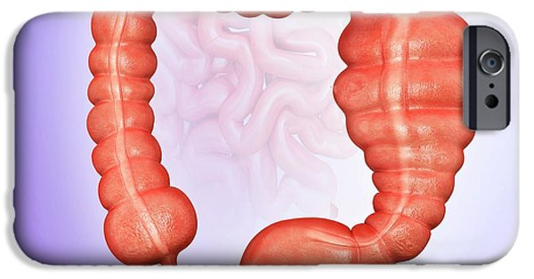 Megacolon IPhone Case by Pixologicstudio