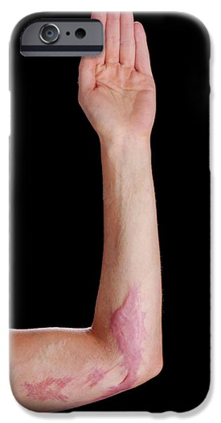 Burns Scar IPhone Case by Mid Essex Hospital Services Nhs Trust