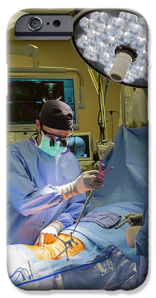 Spine Surgery IPhone Case by Jim West