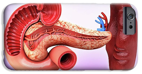 Human Pancreas IPhone Case by Pixologicstudio
