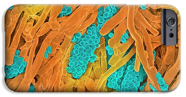 Streptomyces Coelicoflavus Bacteria IPhone Case by Science Photo Library