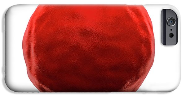 Abnormal Red Blood Cell IPhone Case by Harvinder Singh