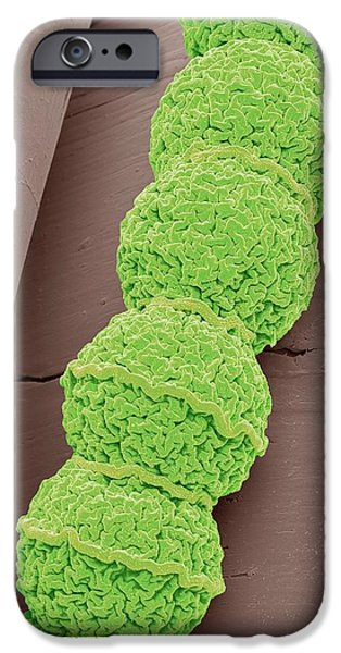 Anabaena Algae IPhone Case by Steve Gschmeissner