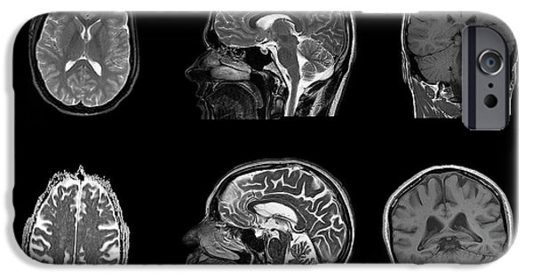 Brain Changes With Ageing IPhone Case by Dr P. Marazzi