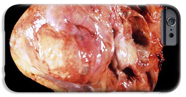 Cardiac Aneurism IPhone Case by Pr. R. Abelanet - Cnri