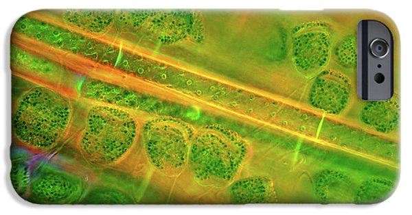 Diatoms And Spirogyra Algae IPhone Case by Marek Mis