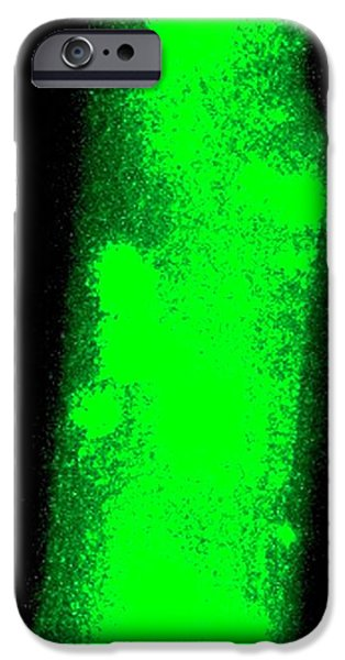Heart Muscle Calcium Sparks IPhone Case by R. Bick, B. Poindexter, Ut Medical School