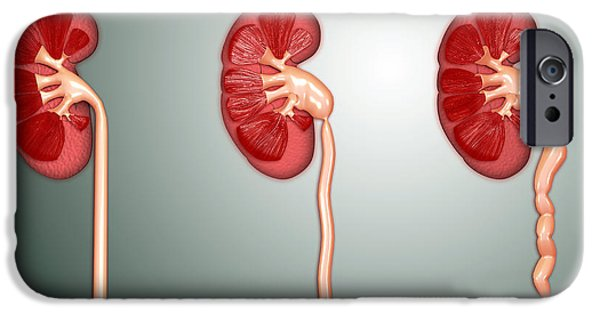 Hydronephrosis Condition Of The Kidney IPhone Case by Stocktrek Images