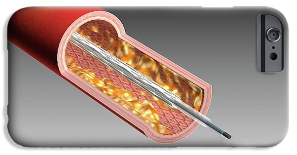 Illustration Of A Coronary Angioplasty IPhone Case by Harvinder Singh