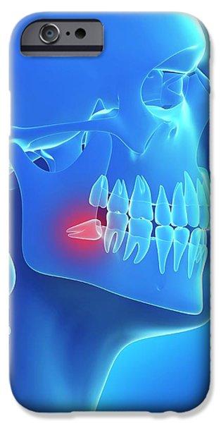 Impacted Wisdom Tooth IPhone Case by Sebastian Kaulitzki