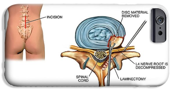 Laminectomy Surgery On Slipped Disc IPhone Case by John T. Alesi
