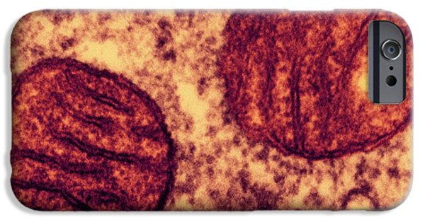 Lung Mitochondria IPhone Case by Ami Images/dartmouth College - Louisa Howard