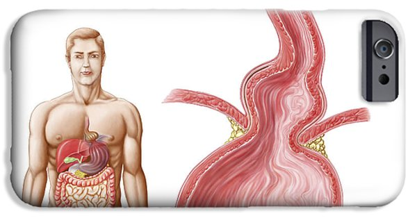 Medical Ilustration Of A Hiatal Hernia IPhone Case by Stocktrek Images