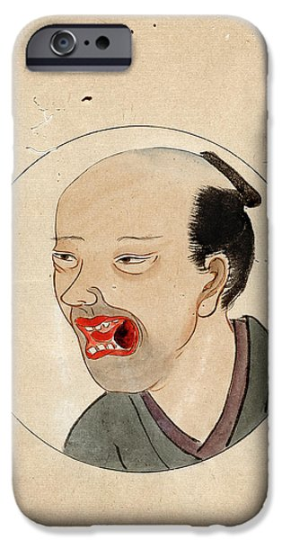 Oral Cancer Patient IPhone Case by National Library Of Medicine