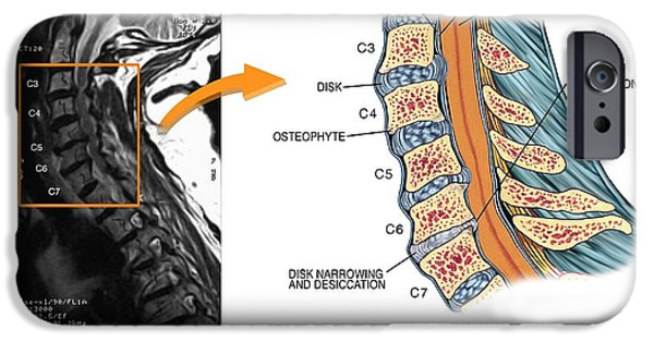 Protruding Disc In The Cervical Spine IPhone Case by John T. Alesi
