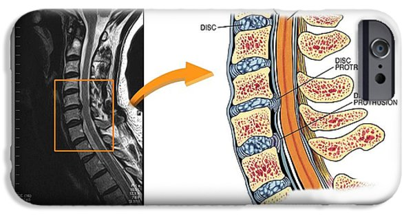 Protruding Discs In The Cervical Spine IPhone Case by John T. Alesi