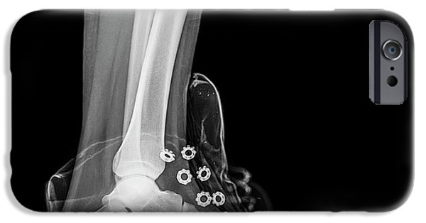 Running Shoe X-ray IPhone Case by Photostock-israel