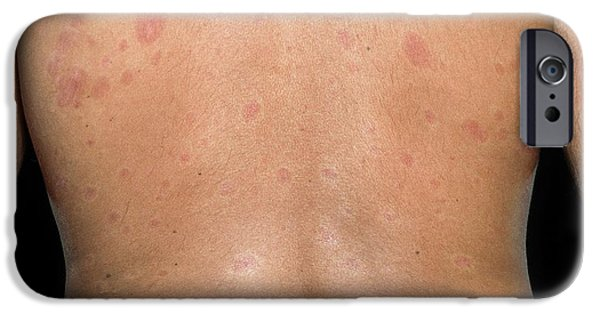 Skin Plaques In Systemic Sclerosis IPhone Case by Science Photo Library