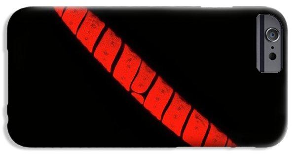 Spirotaenia Alga Autofluorescence IPhone Case by Gerd Guenther