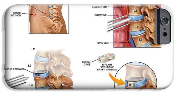 Surgery To Fuse The Lumbar Spine IPhone Case by John T. Alesi