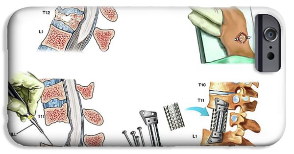 Surgery To Fuse The Thoracic Spine IPhone Case by John T. Alesi