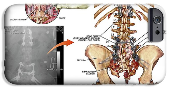 Surgery To Fuse Thoracic And Lumbar Spine IPhone Case by John T. Alesi