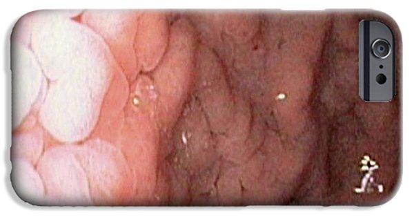 Gastritis IPhone Case by Gastrolab