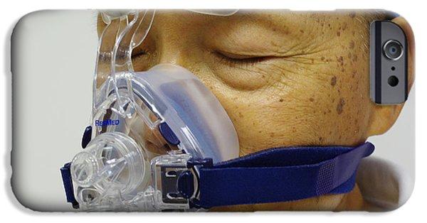 Sleep Apnea Treatment IPhone Case by Scimat