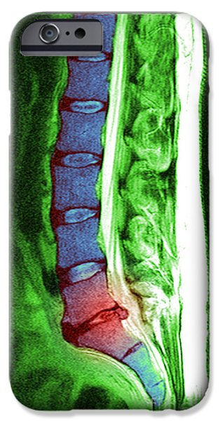 Herniated Disc IPhone Case by Medical Body Scans