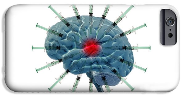 Brain With Syringes IPhone Case by George Mattei