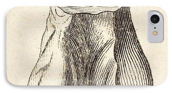 1763 Dinosaur Bone Misidentified Scrotum IPhone Case by Paul D Stewart