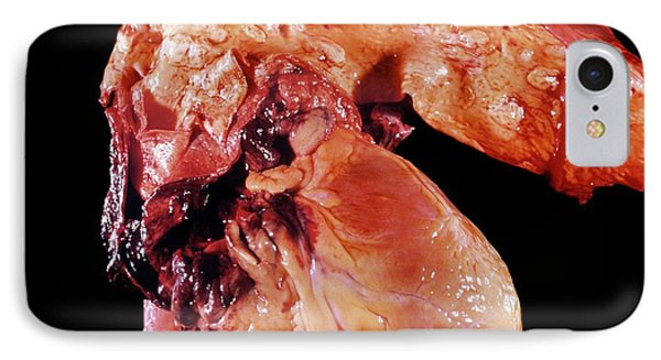 Aortic Aneurism IPhone Case by Pr. R. Abelanet - Cnri