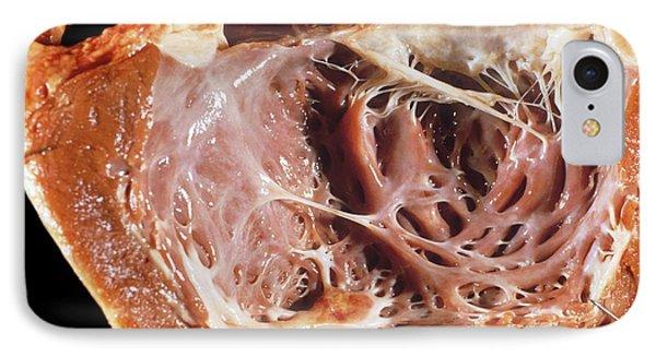 Cardiomyopathy IPhone Case by Pr. R. Abelanet - Cnri