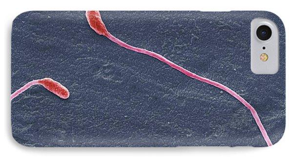 Clostridium Phytofermentans IPhone Case by Steve Gschmeissner