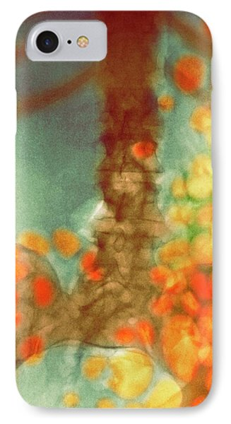 Distended Bowel In Alcohol And Drug Abuse IPhone Case by Dr P. Marazzi