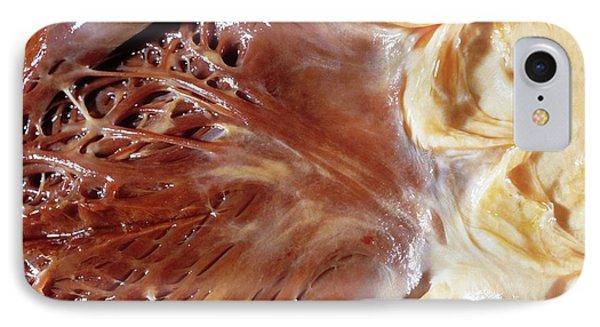 Fatty Heart IPhone Case by Pr. R. Abelanet - Cnri