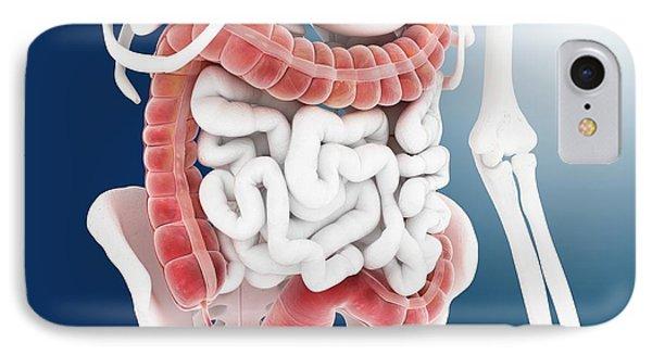 Large Intestine IPhone Case by Springer Medizin