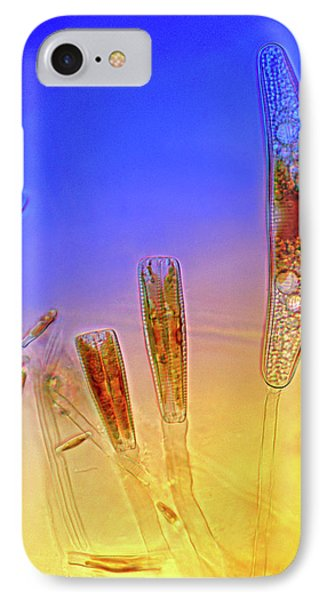 Diatoms IPhone Case by Marek Mis