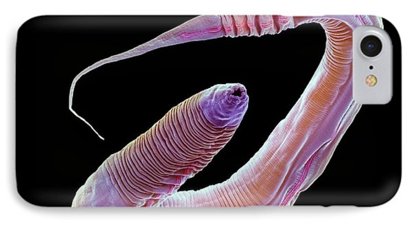 C. Elegans Worm IPhone Case by Steve Gschmeissner