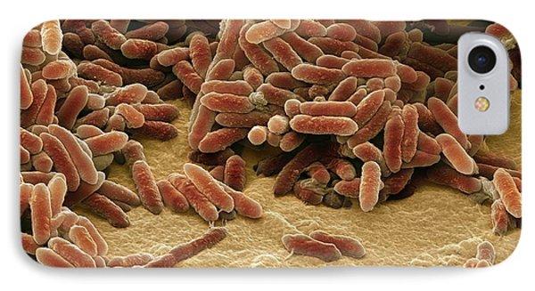 Aquaspirillum Bacteria IPhone Case by Steve Gschmeissner