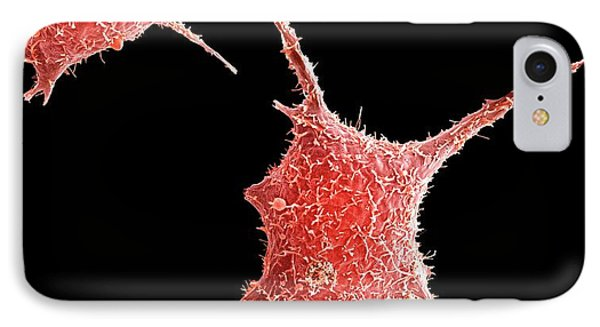 Breast Cancer Cell IPhone Case by Science Photo Library