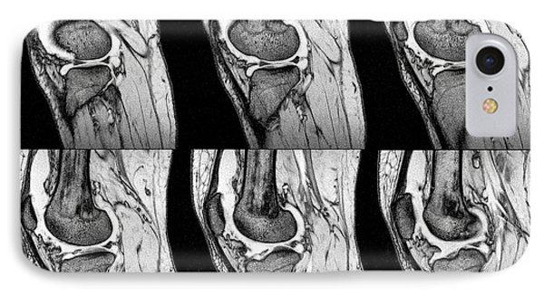 Knee Sprain IPhone Case by Zephyr